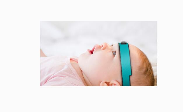 【案例】小儿外耳廓畸形及外耳道闭锁验配助听器
